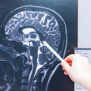 traumatic brain injury-diagnosis-accident