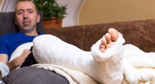 man with broken leg on couch